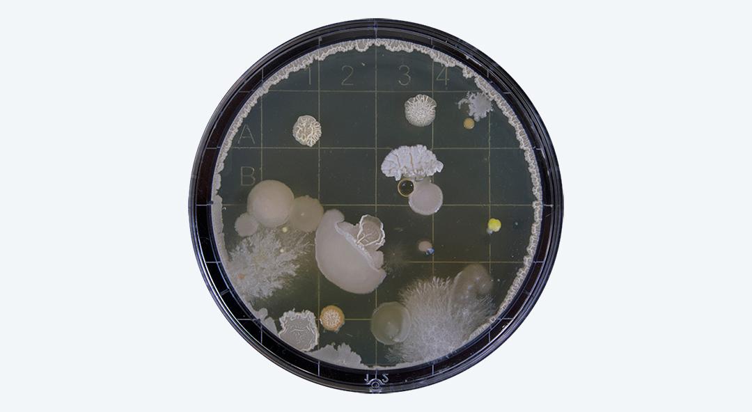 Samenwegsinfektionen